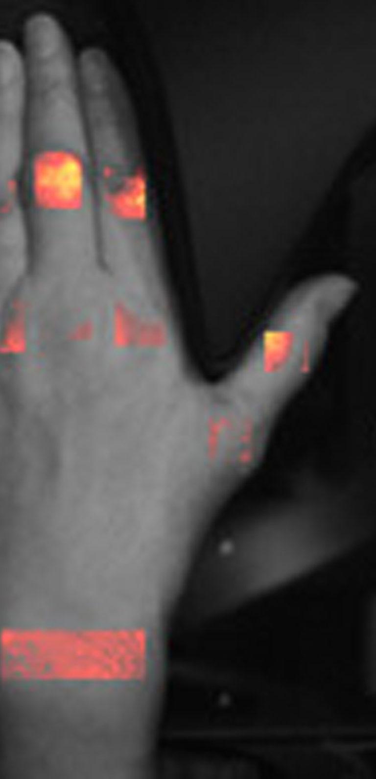 Slider-Case-HandScan-Demcon